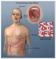 Chemo side effects